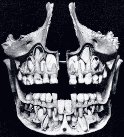 Deciduous Teeth – Skeleton view – Gray's Anatomy